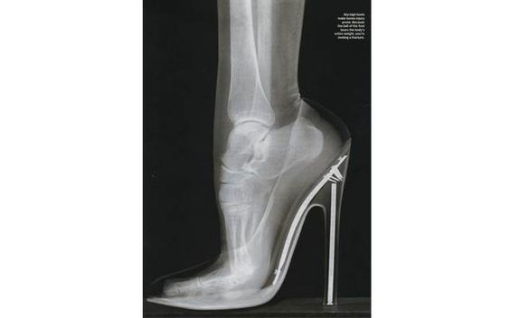 """X-Ray of foot in high heeled shoe! "" ""just look at the physical stress"""