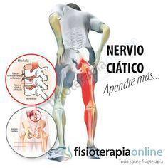 Síndrome Piramidal Y Atrapamiento Del Nervio Ciático Todo Lo Que Necesitas Saber Nervio Nervio Ciatico Dolor De Ciatica