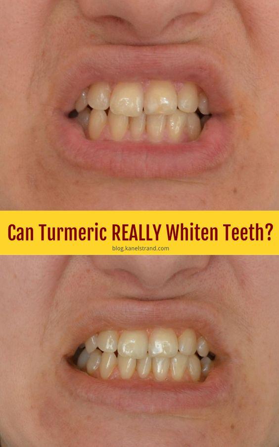 Turmeric Teeth Whitening Does Turmeric Whiten Teeth Hoax ... |Turmeric Teeth Before And After