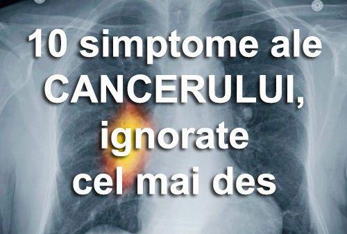 varicoză în timpul cancerului)