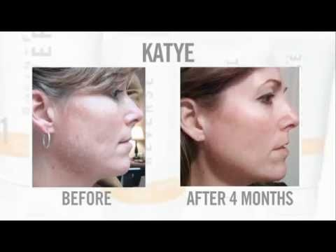 Rodan + Fields Skin Care Before and After Pictures: http://www.robbins.myrandf.com