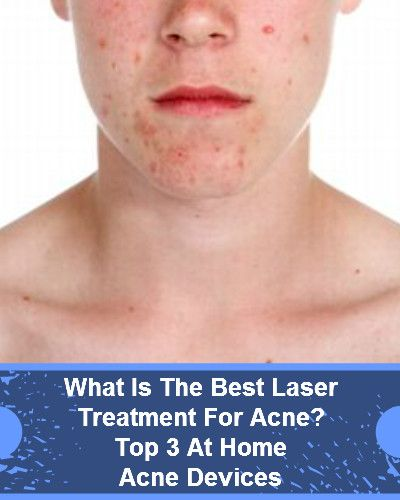Best Laser Treatment For Acne | Top 3 At Home Acne Devices