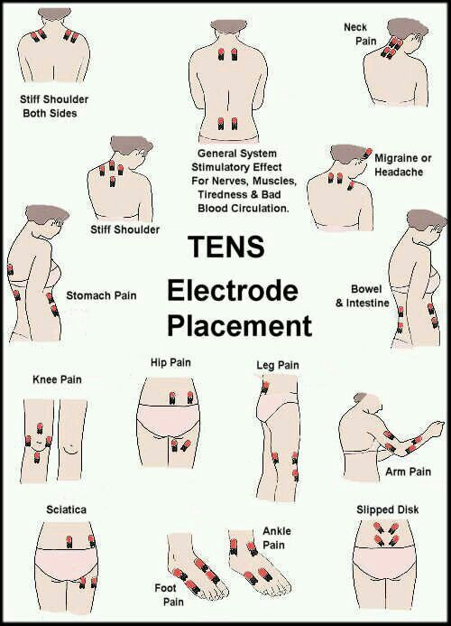 Tens Placement Piriformis Syndrome Google Search Tens Unit