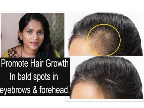 How To Promote Hair Growth In Bald Areas Like Forehead Eyebrows Youtube Forehead Hair Growth Promote Hair Hair Remedies For Growth