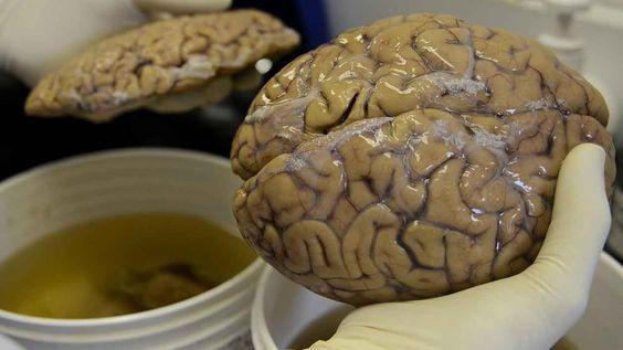 Un scientifique manipule un cerveau dans un laboratoire de Medellin, en Colombie.