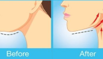 The Best Exercises For Getting Rid Of That Unwanted Double Chin and Neck Fat