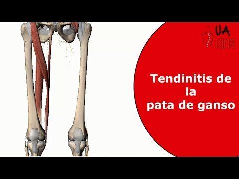 Tendinitis De La Pata De Ganso Que Es Fisioterapia Youtube Pata De Ganso Tendinitis Fisioterapia
