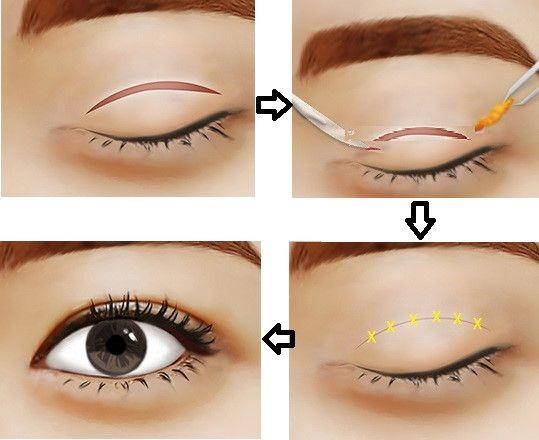 Thực hư: chỉ bấm mí mắt có tự tiêu được không?