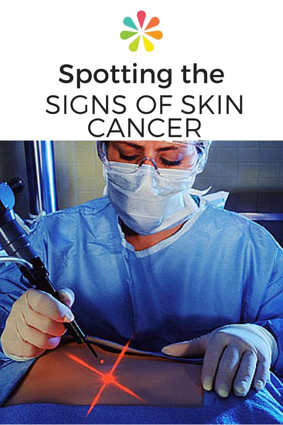 Seven signs of cancer that few people knew 81