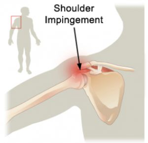 Impingement Exercises for your Shoulders That Actually Work