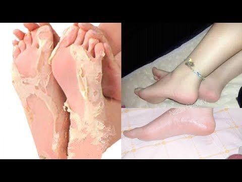 نصف كوب خل و تخلصي من إسمرار الأرجل و التشققات من الإستعمال الأول و إلى الأبد ونتيجة خليك بالبيت Y Pretty Skin Care Beauty Skin Care Routine Dry Skin Makeup