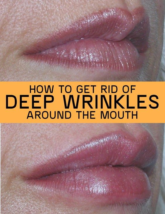 Mouths, The o'jays and How to get rid on Pinterest
