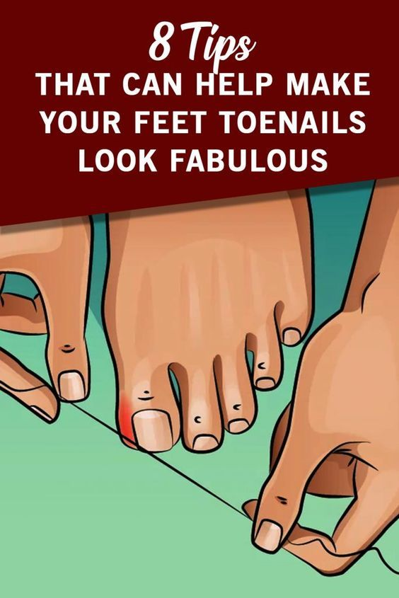 We Spend A Lot Of Time On Our Feet Not Noticing That It Can Cause Them Serious Injuries We Wear Uncomfortable Sho Ingrown Toe Nail Toe Nails Make It Yourself