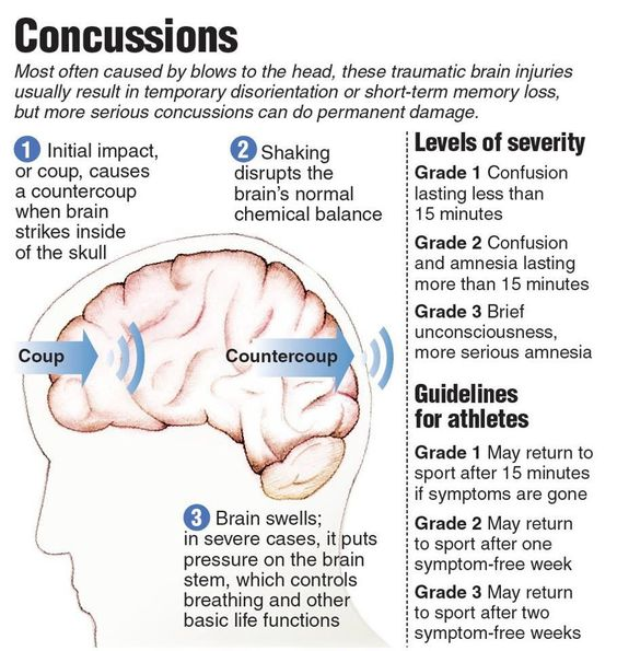 concussions traumatic brain injury and football Having a concussion may not be the only indicator of brain damage among football  football players without concussions  brain injury from concussions.