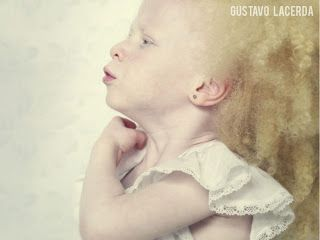 Pip Pip Hooray: Rare Albino Photographs