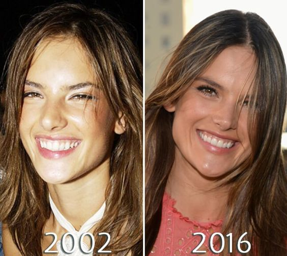 Alessandra Ambrosio chin before and after photo