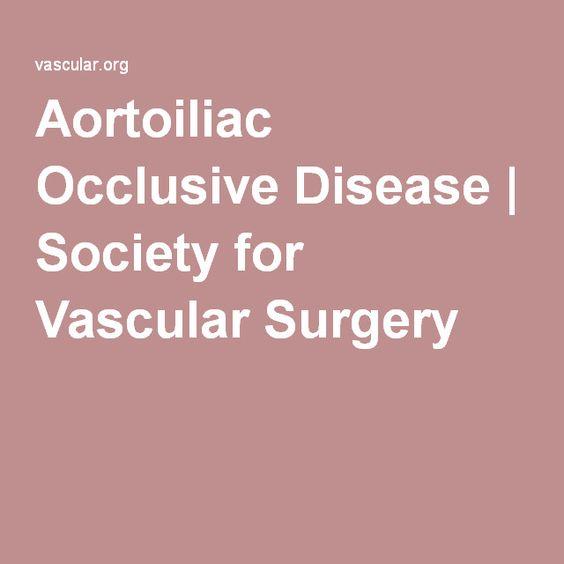 Aortoiliac Occlusive Disease | Society for Vascular Surgery