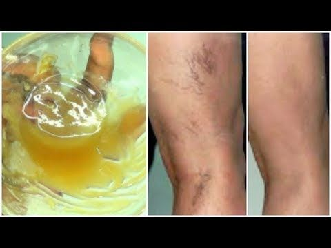 coconut oil for spider veins