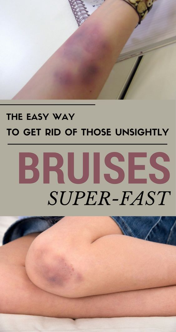How To Get Rid Of Dark Spots From Bruises