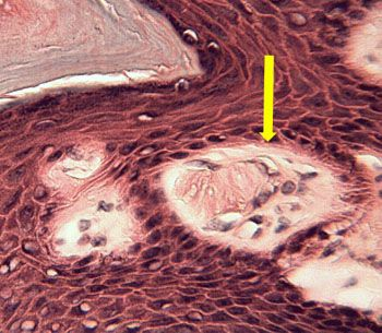 Stratified Squamous Epithelium Meissener's Corpuscle
