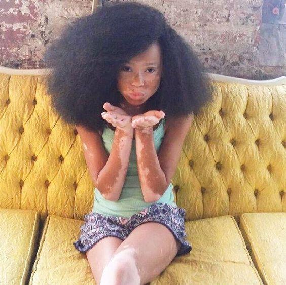 """Kisses to my A-stars ✨ Y'all are the best  #aprilstar #vitiligo #model"""