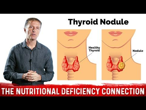 What S Behind Thyroid Nodules Youtube Thyroid Nodules