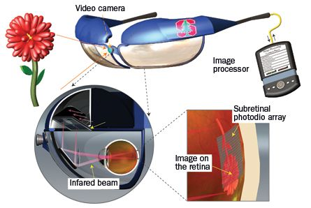 A system being tested in rats may partially restore sight for some blind people. A handheld computer processes images from a video camera that sits on specialized goggles. Lasers inside the goggles send that information to photovoltaic chips implanted in the eye, stimulating nerve cells that send information to the brain. The person then perceives the images seen by the camera. Credit: James Loudin/Nature Photonics