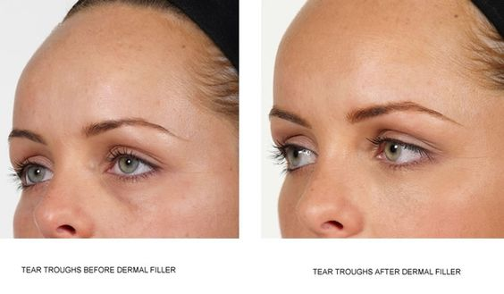 How To Get Rid Of Tear Troughs Naturally