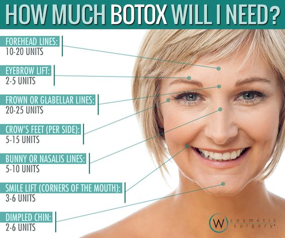 eyebrow pain diagram eyebrow lift diagram botox eyebrow lift injection sites botox philadelphia ...