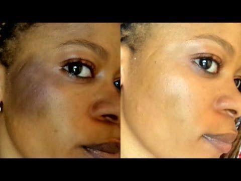 5d05a0ccfad2315643817ad2a4a501f0 - How To Get Rid Of Sun Tan On Brown Skin