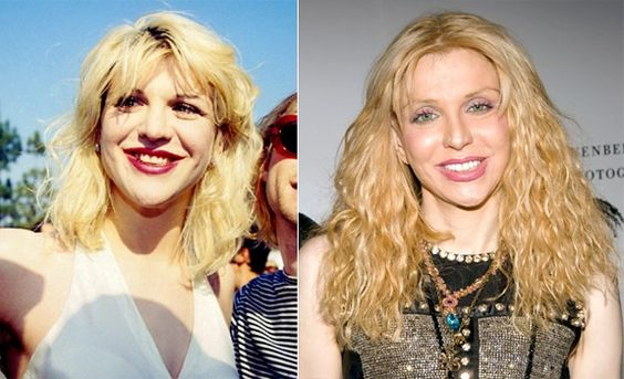 """Courtney's corrected smile highlights her *natural* beauty... her nose was fine! """"Ill Grills: Celebrity teeth makeovers"""" from NY Daily News http://nydn.us/H2kHlL"""