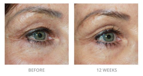 5d1b2a96d057e8925fddea718d95b94c - How To Get Rid Of Tired Looking Eyes Naturally