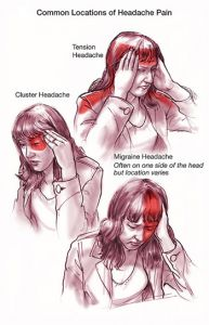 Migraines - Self Massage/Pressure Point Therapy