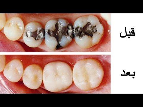 وصفة لازالة تسوس الاسنان والجير فى يوم واحد Youtube
