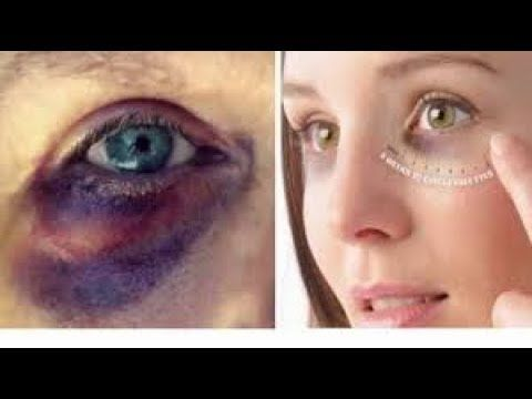 5d83095d59c18a76746991eb9c59ef4e - How To Get Rid Of Swelling Black Eyes Fast