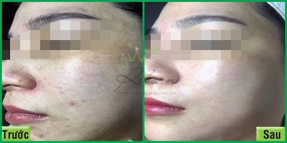 Đến Reborn skin clinic ngay hôm nay để thải độc da mặt thôi!