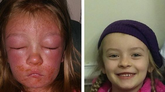 NEWPORT NEWS, Va. – A Virginia mom says her child has a severe case of impetigo after swimming at Huntington Beach on Saturday. Nicole Sullivan says her daughter, six-year-old Bella, had a sc…
