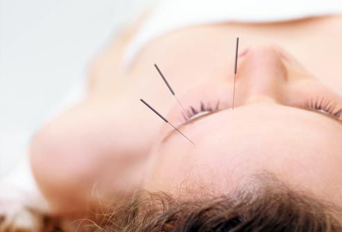14 non-drug treatments for Migraines