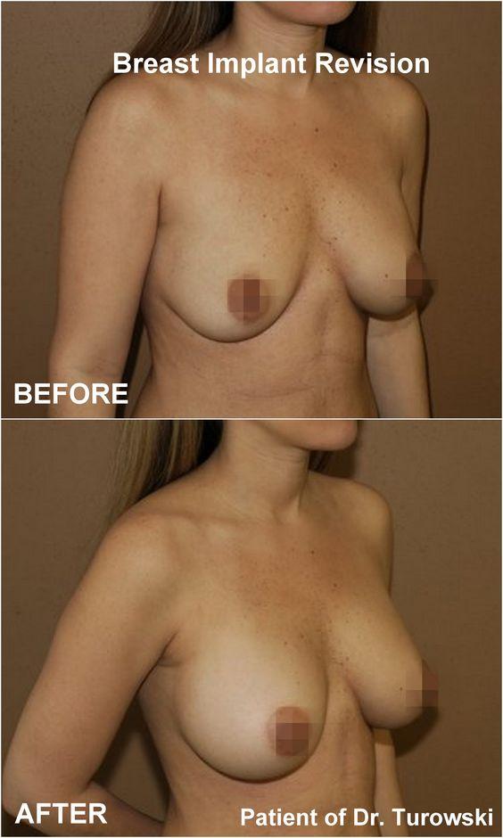 Augmentation Brust Chicago Chirurg
