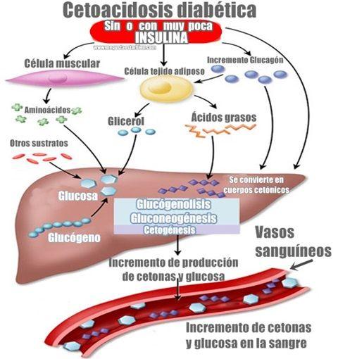 diabetes mellitus tipo 1 cetoacidosis versus cetosis