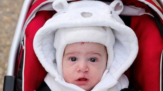 La fente labiale et palatine - Santé - Enfant - Développement - Physique - Mamanpourlavie.com
