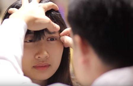 Bác sỹ tư vấn trước khi thực hiện cắt mí mắt