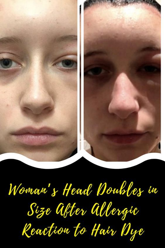 Woman S Head Doubles In Size After Allergic Reaction To Hair Dye Everything Family Relations Wow Products