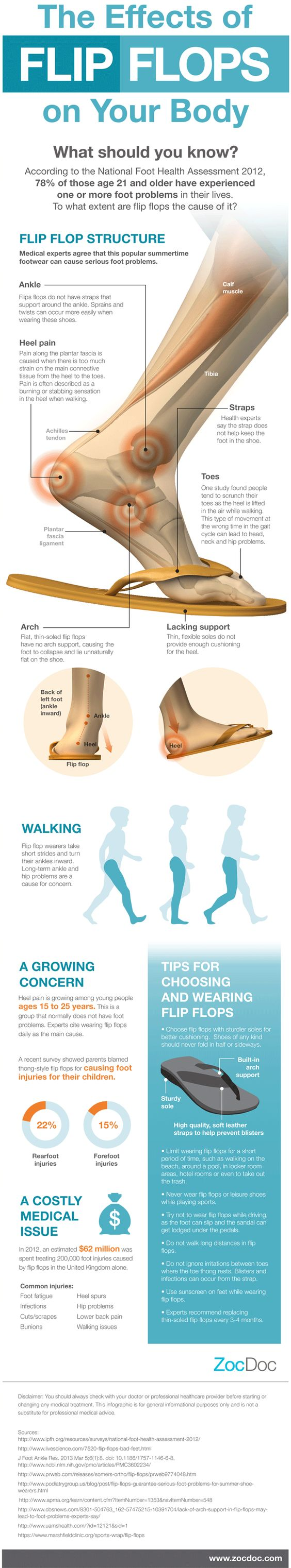 Your body on flip flops: What your favorite sandals are really doing to your feet - NY Daily News