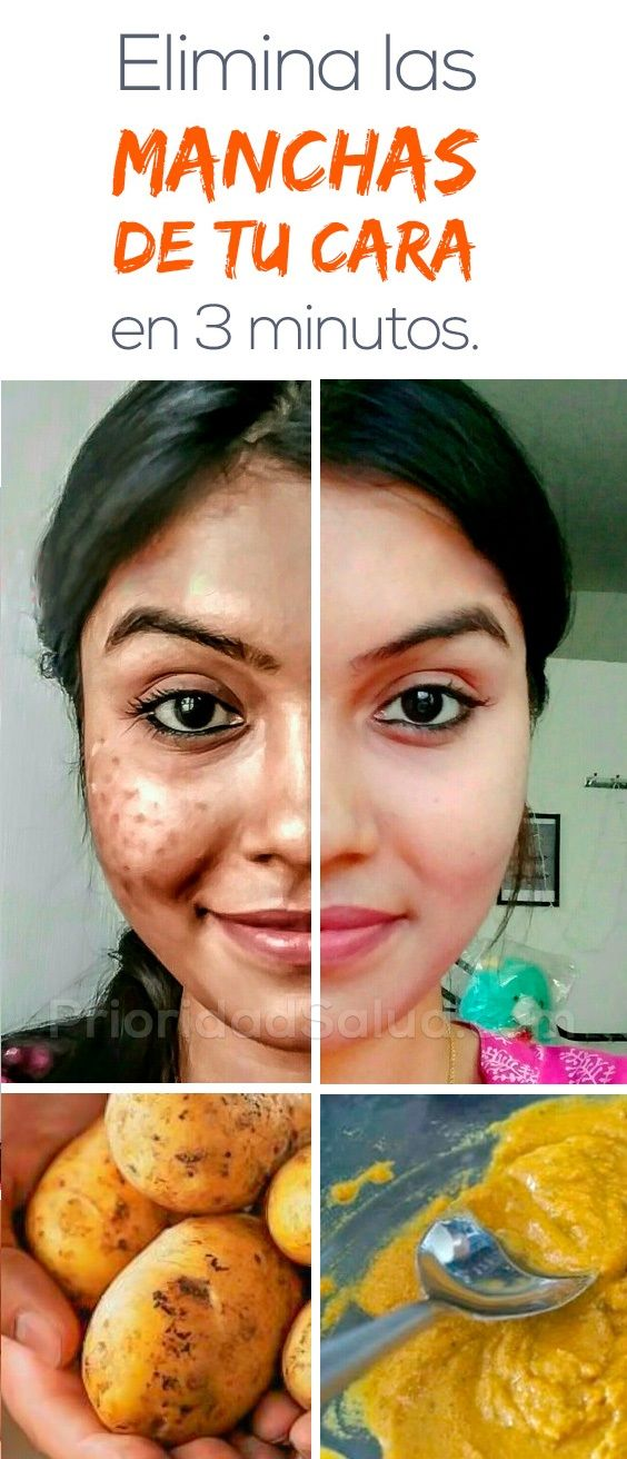 quitar manchas de la cara naturalmente