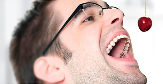 ¿Quieres un buen consejo para mantener limpia tu ortodoncia Lingual o Incógnito?