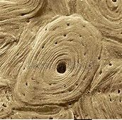 COMPACT BONE. in electron microscope. looks like weird sand dunes. central hole, haversian canal obvious. lacuna are the tinier holes: