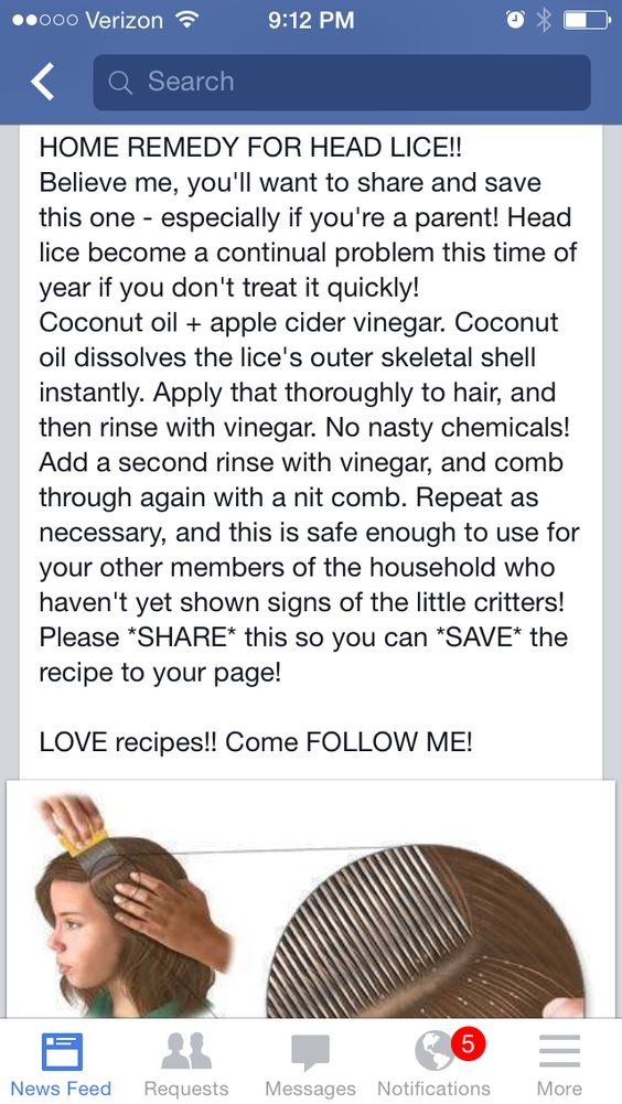 Head lice treatment home remedy-7870