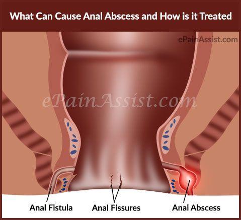 Pity, fistula photos and anal symptoms think