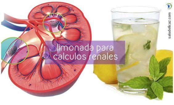 Entre los remedios caseros para tratar problemas de los riñones se destaca uno muy efectivo: la limonada para los calculos renales.